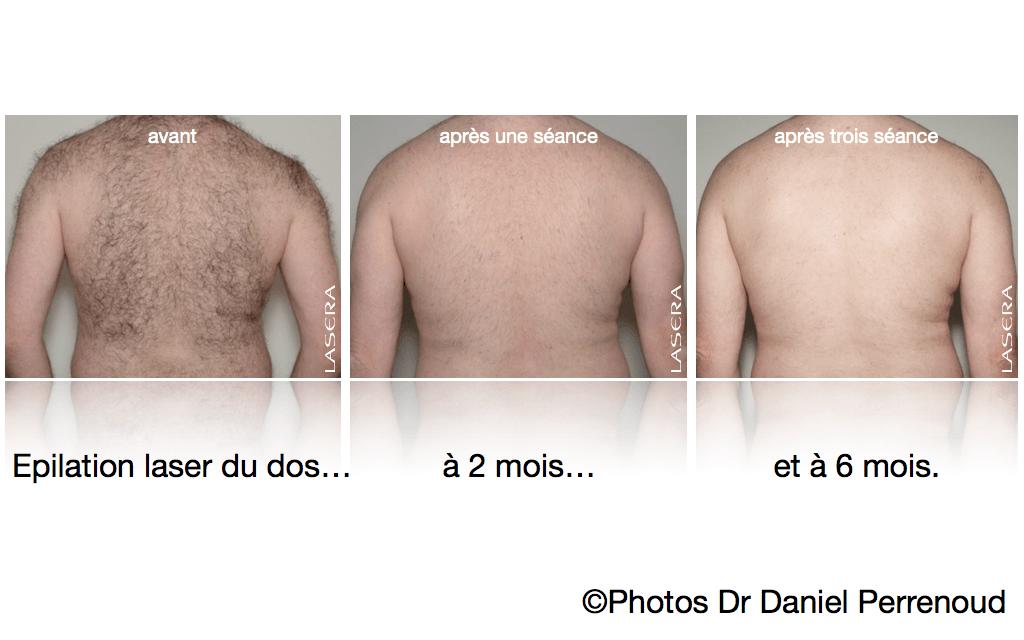 Epilation laser du dos, évolution à 2 et 6 mois, après une et trois séances.