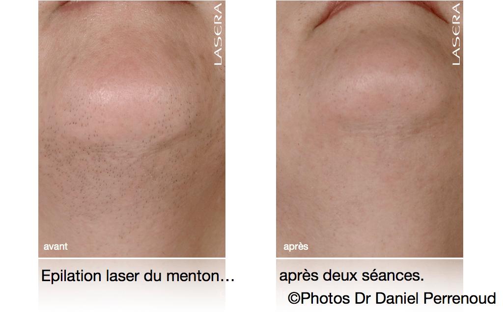 Epilation laser du menton, après deux séances.