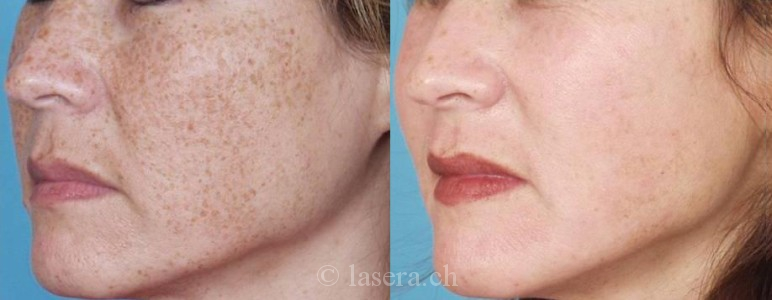 © lasera : taches pigmentaires